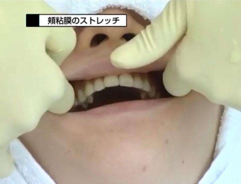 歯肉マッサージ