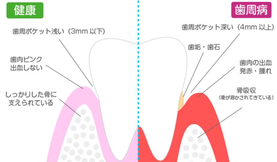 歯周病の視角図解